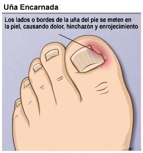 La medicina como librarse del hongo de las uñas en los pies